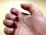 柔術って指が痛い